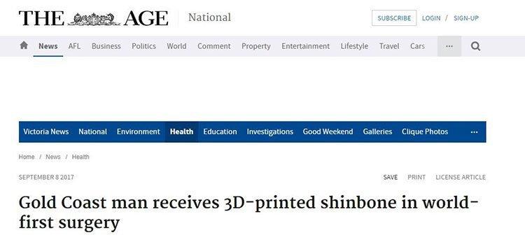3D printer surgery